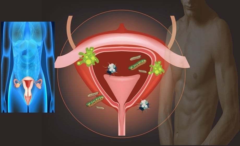 Az ureaplasmosis és prostatitis shema antibiotikumos kezelése a férfiak számára