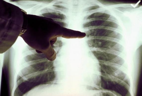 tüdő betegség a paraziták testből történő eltávolításának módszerei