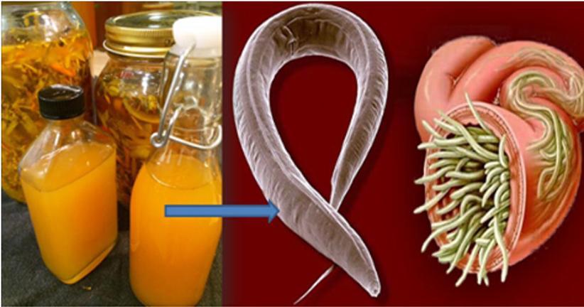 giardia remedio natural melyik férgek ellen