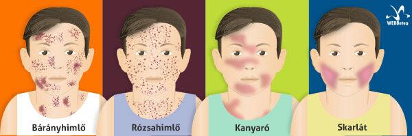 csecsemők helminthiasis tünetei és kezelése hogyan lehet eltávolítani a parazitákat az emberekben