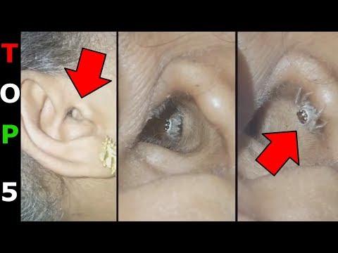 milyen férgek nőnek az emberben pinworm tünetek felnőtt kezelő tablettákban