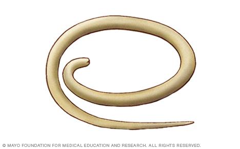 A pinworms gyógyítják őket