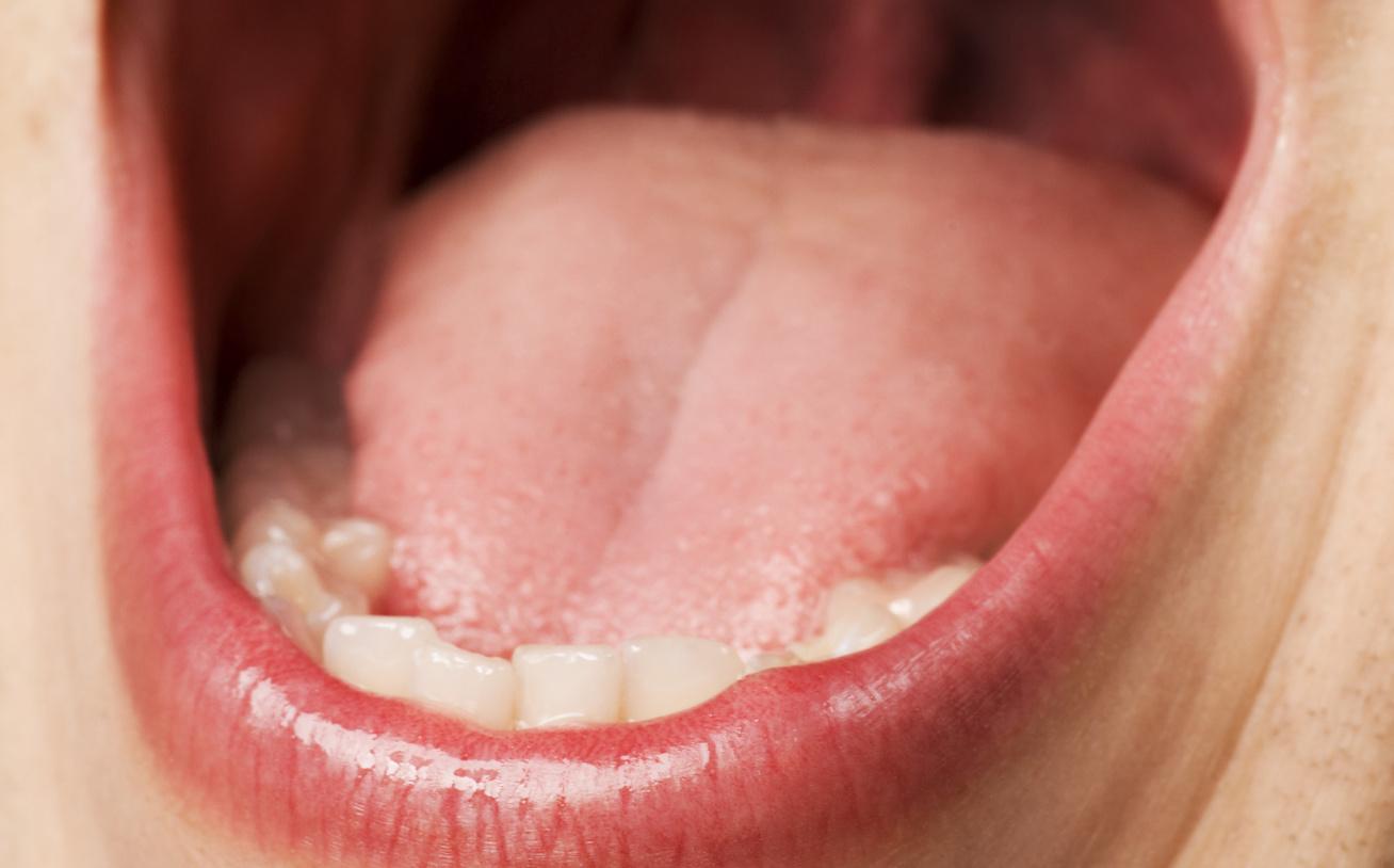 a száj belső szerveinek szaga