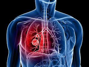 A tüdőrák tünetei - mik a legáltalánosabb panaszok? | prokontra.hu