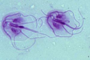 széklet az enterobiasisért paraziták és pattanások az arcon