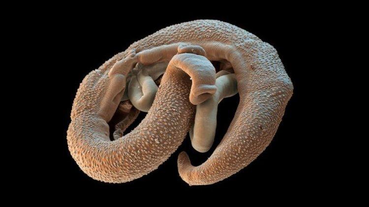 gyógyítja a parazitákat és férgeket gyógynövény anthelmintikus gyűjtemény
