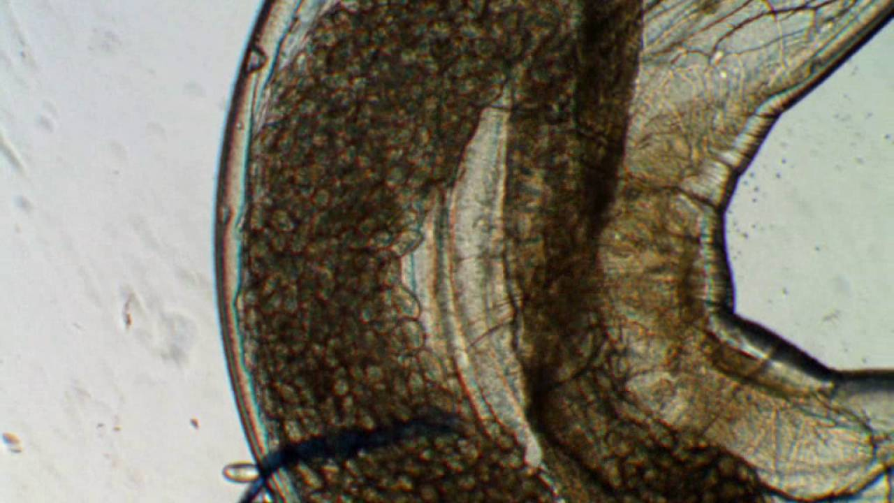 Mit eszik a pinworms
