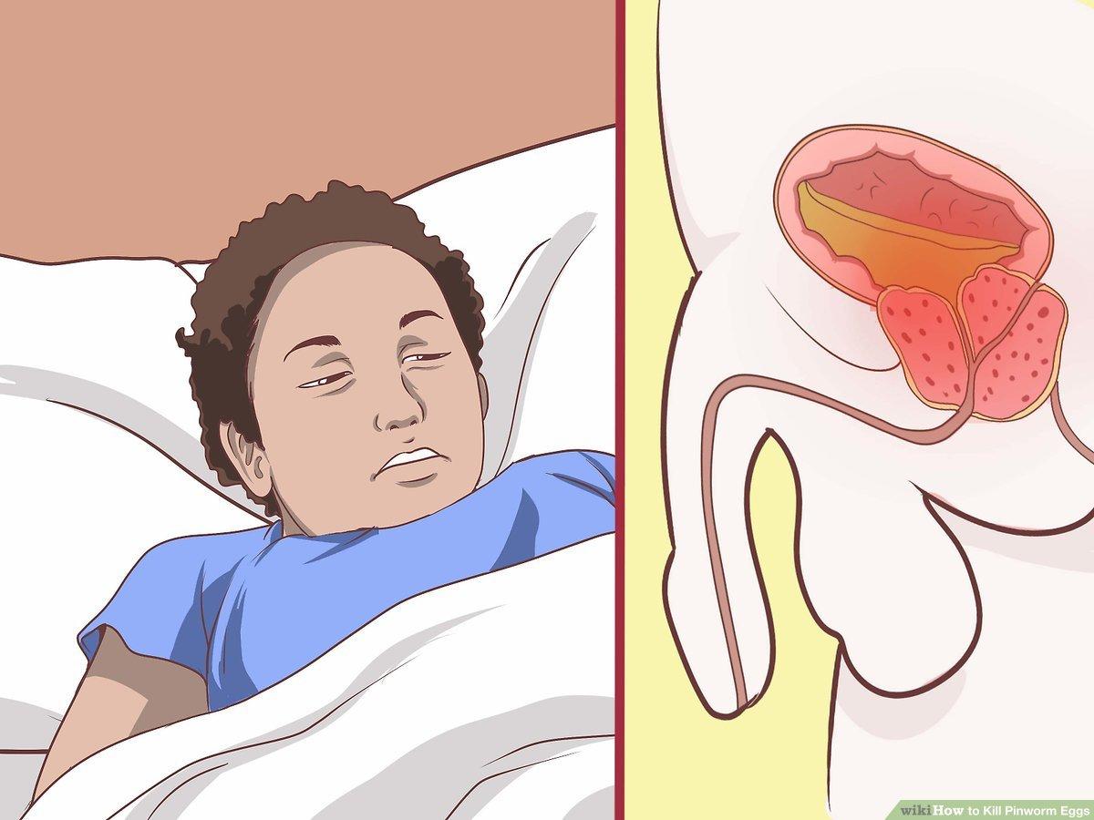A pinworms a szemből kilép hogyan lehet megvenni a kábítószert a parazitáktól