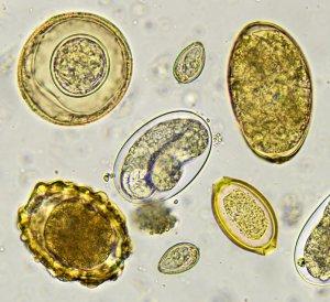 az emésztőrendszer helminthi betegsége a gyógyszer megöli a parazitákat a testben