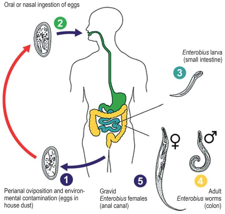 kvarcizálás pinwormsből