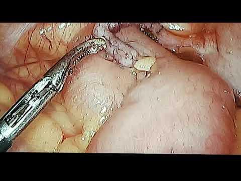enterobiosis és fehérvérsejtek a vizeletben
