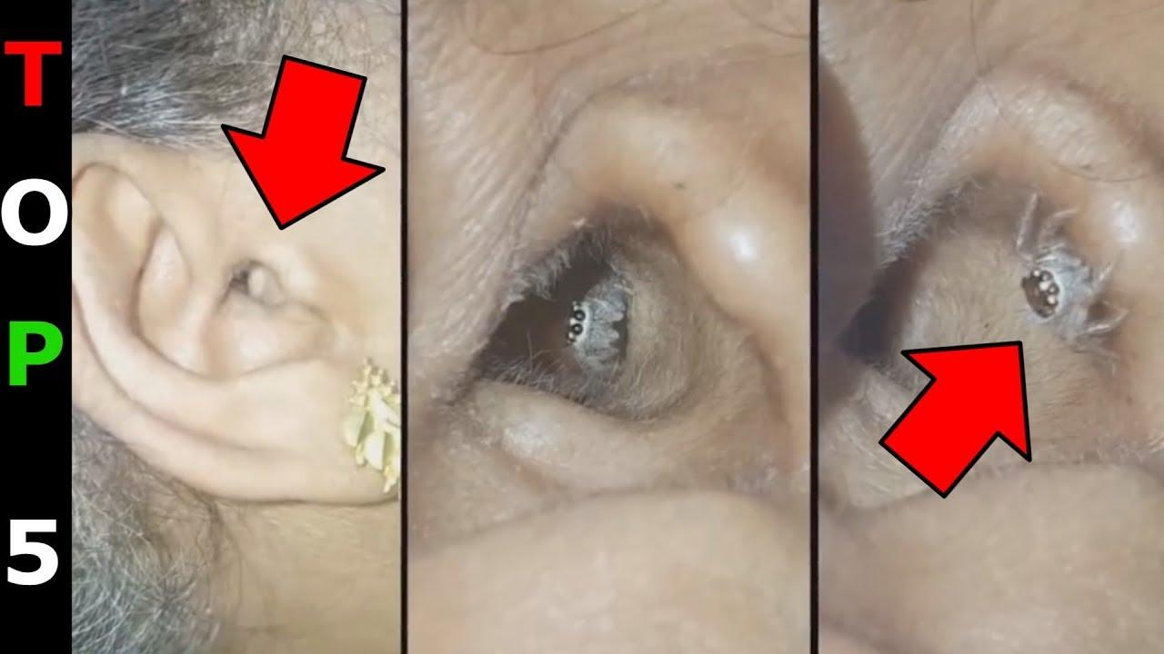 Parazita pirula az emberi testben