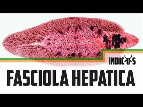 férgek milyen gyógynövényeket inni paraziták a sügérben