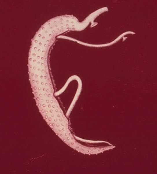 A szarvasmarha szalagféreg emésztőrendszerrel rendelkezik deworming emberek drogok