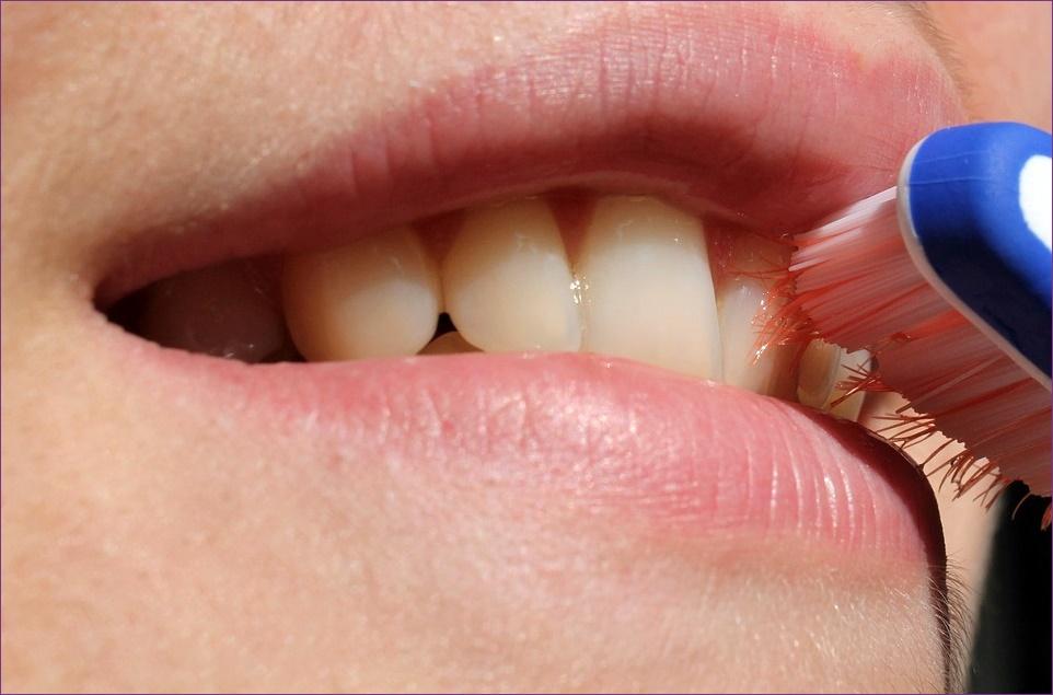 szájszag evés után, hogyan kell tisztítani