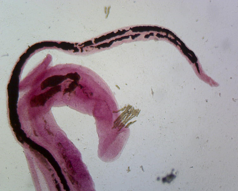 hogyan nyilvánul meg a giardiasis az emberekben enterobiasis kontroll a kezelés után