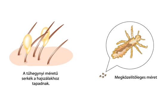 hogyan lehet megszabadulni a parazitáktól a citromon milyen parazitak az emberekben
