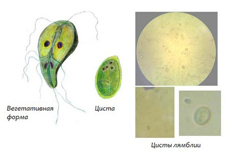 diéta gyermekek giardiasis kezelésében qcm sur les platyhelminthes