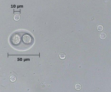 giardia cysts size