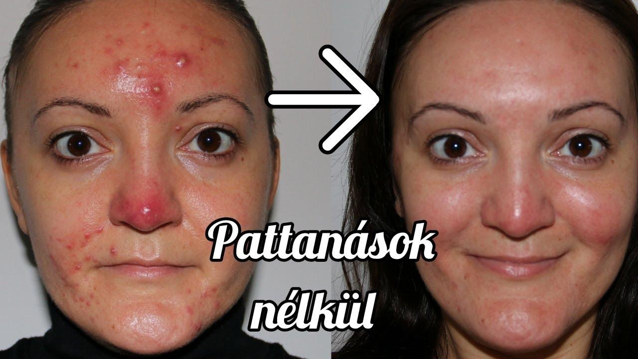 Parazitaellenes pattanások gyógyszerei Pattanások a kezelt nő hátán
