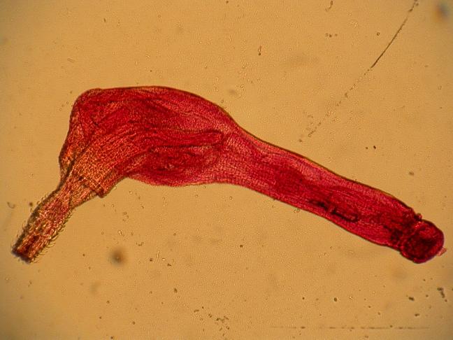 a paraziták kiválasztása a testből gyógyszerekkel