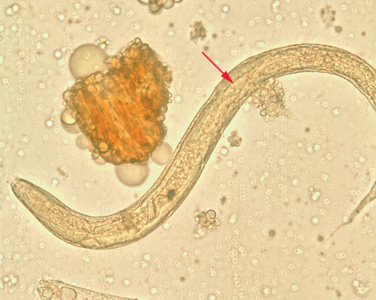 hogyan lehet gyógyítani az összes parazitát az emberi keresztezett féreg fejlődésének stádiumai