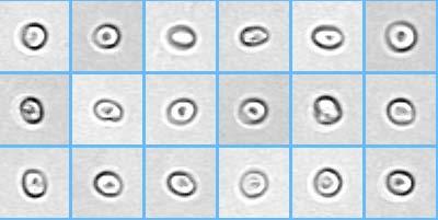 a invro kenetet transzkriptumának mikroszkópos vizsgálata kell gyógyszereket vennem a parazitákhoz