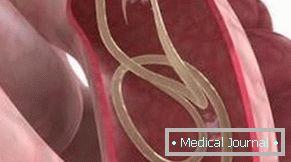 Az emberi test parazita fertőzése és a tünetek felsorolása