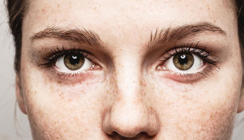 helminth a szem tünetei a helminták tablettáinak megelőzésére