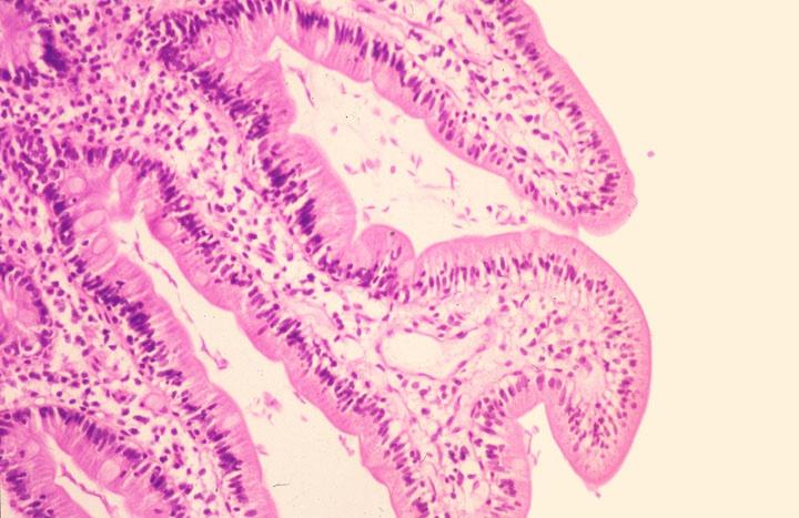 Giardia duodenum histology, IBDay program a5 screen by misandbos - Issuu