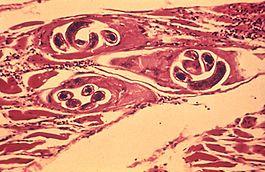 Trichina (borsóka) fertőzés (trichinellosis)