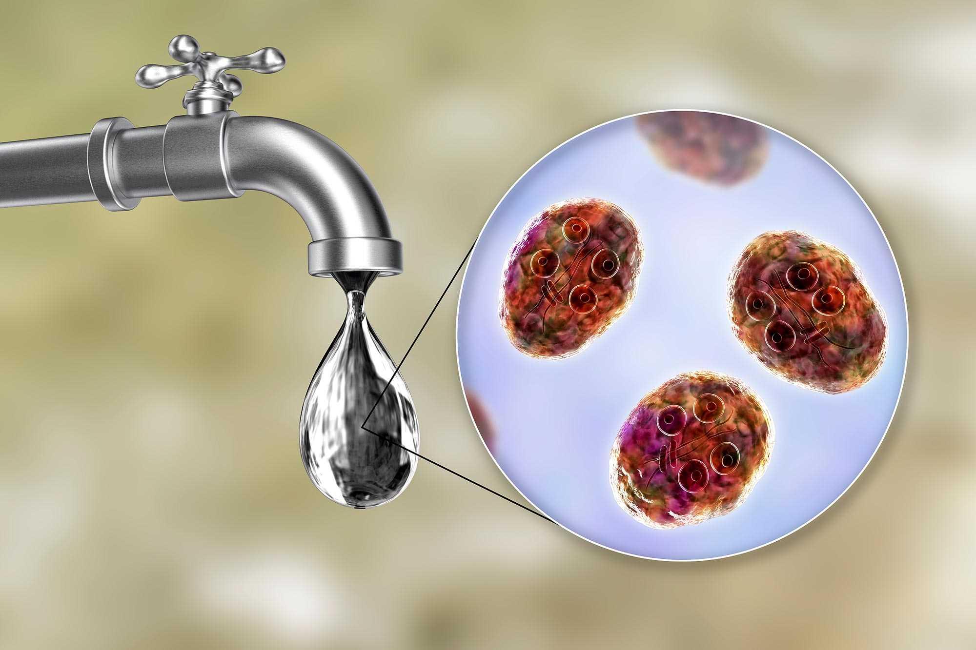 Giardia u ludzi objawy, LAMBLIOZA zakażenie lambliami - utrapienie.