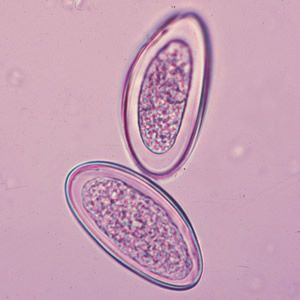 enterobiosis tojások