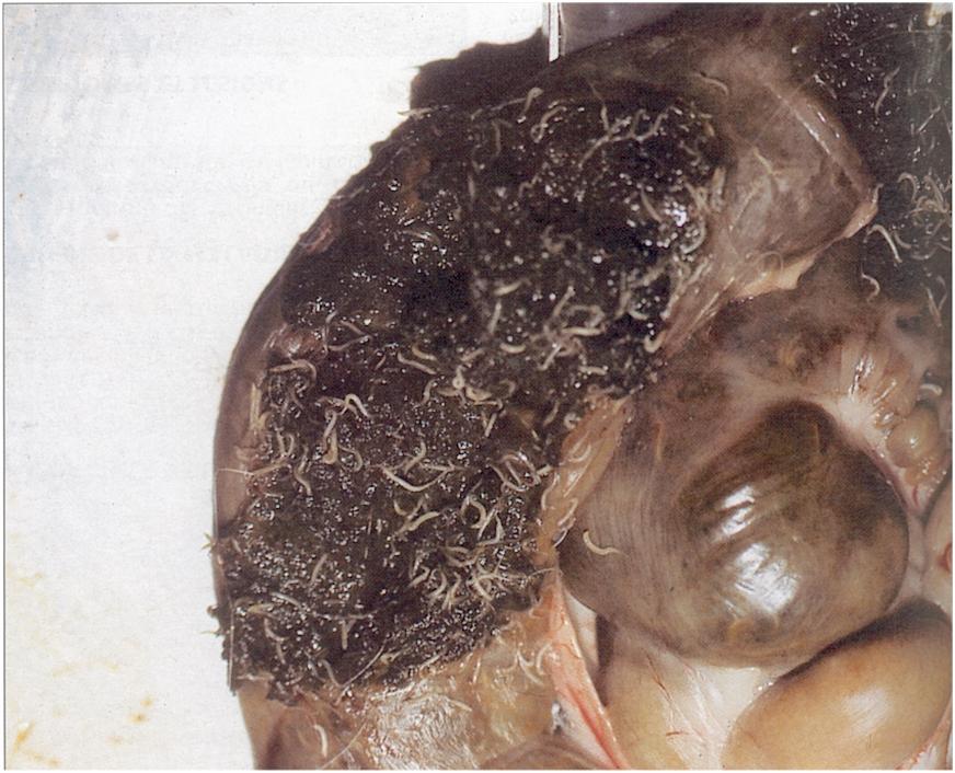 férgek pinworm kezelése a gyomrom rossz leheletet érez