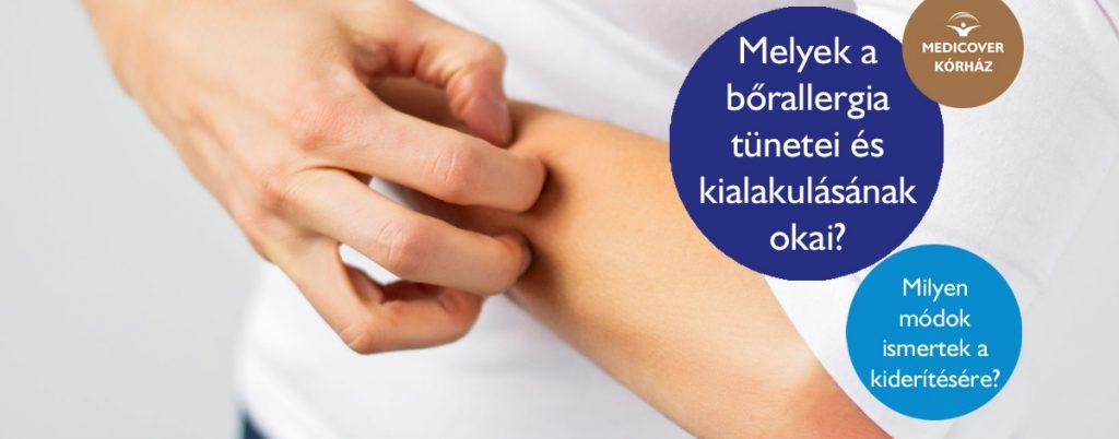 bőr alatti helminták kezelése