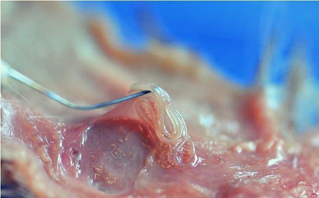 Pinworm férgek - Szövődmények A pinworms élhetnek a hüvelyben