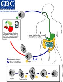 giardiasis milyen betegség