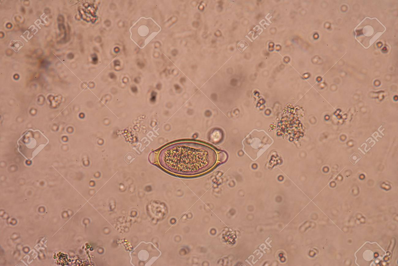 trichocephalosis geohelminth mérgező gyár, ahol előállítják
