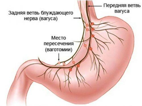 rossz lehelet, ha a gyomor üres