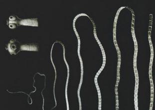 Az enterobiosis férgek
