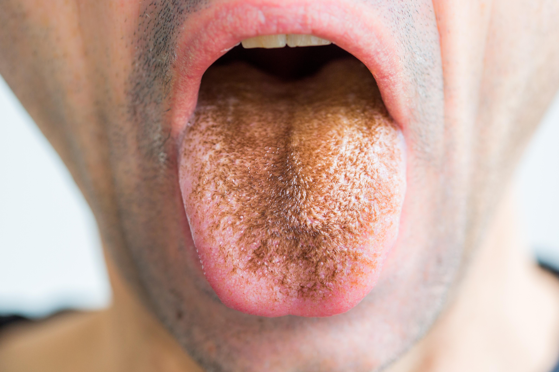 rossz, rothadt szag a szájából
