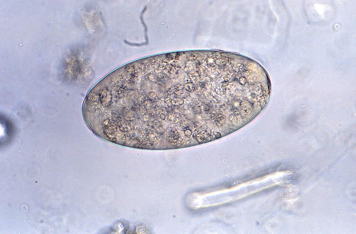 hány éves az enterobiasis pinworm következményei