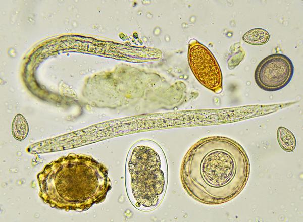 aszcariasis hookworm necatorosis lenmag parazita kezelésére