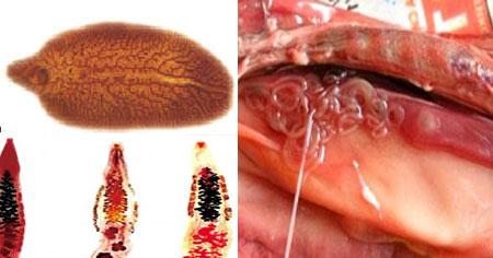 Opisthorchiasis és giardiasis: a paraziták jelei és tünetei az epehólyagban - Asztma March