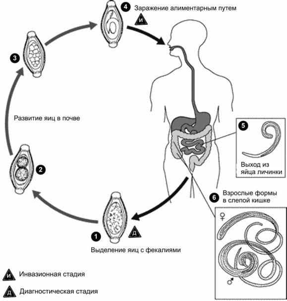 Trichocephalosis hogyan néz ki, Hogy néz ki a fejtetű?