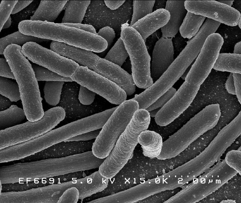 nem bélben élő paraziták egy módszer, amely nem giardiasis megelőzési teszt