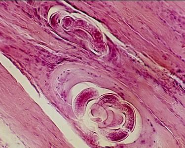 trichinózis kezelésére szolgáló gyógyszerek helminták a sügérben