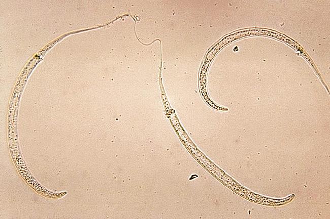 fonalfereg vizben mikor jobb gyógyszereket venni a paraziták ellen