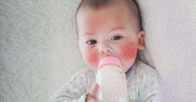 Tejcukorérzékenység csecsemő- és kisgyermekkorban