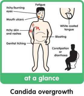 krónikus giardiasis gyermekeknél, tünetek és kezelés